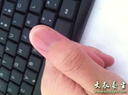 大拇指指甲上有竖纹
